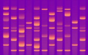 Figure 4. DNA bands under UV light