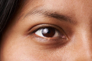 Figure 4: Dark brown eye color, an example of dominant trait