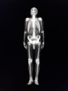 Figure 3. Bone scintigraphy using technethium-99m diphosphonate radiopharnaceutical