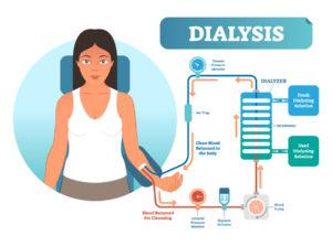 Figure 4 .Dialysis medical procedure system