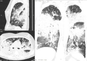 Figure 2. Computed tomography scan in a patient with severe viral pneumonia caused by SARS-CoV-2