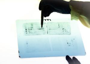 Figure 6. Observation of samples