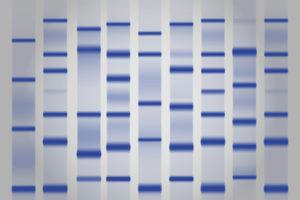 Figure 1. Gel electrophoresis separation of DNA